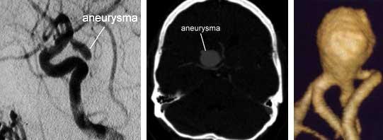 Aneurysma-van-de-hersenen-1