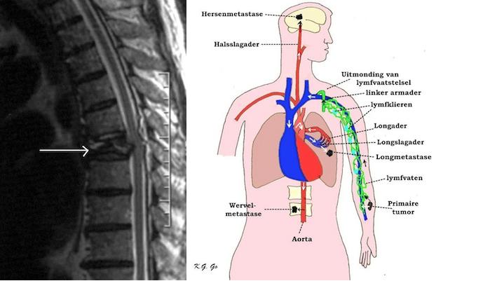 hemangioom lever kwaadaardig
