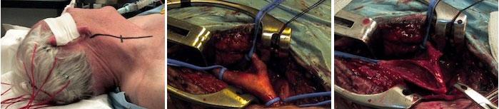bloedvaten verwijden