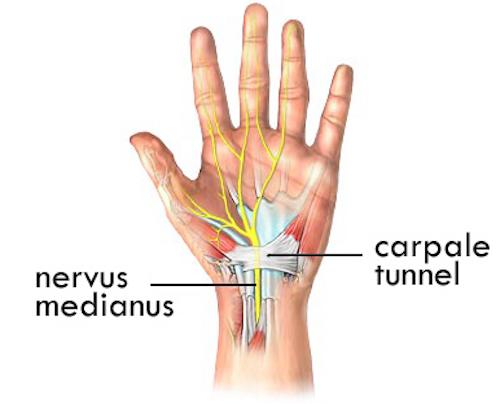 artrose aan vingers