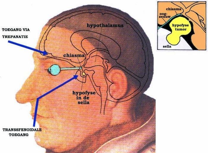 tumor hoofd