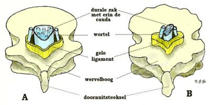 acute rugpijn