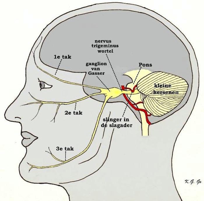 Trigeminusneuralgie Neurochirurgisch Centrum Zwolle